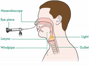 Nasendoscopy Procedure